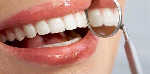 青年 女 牙科 牙医 牙齿 口镜_14505328_xxl