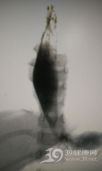3个月后食管最狭窄处管径8mm