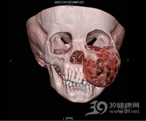 2岁宝宝口腔巨瘤1