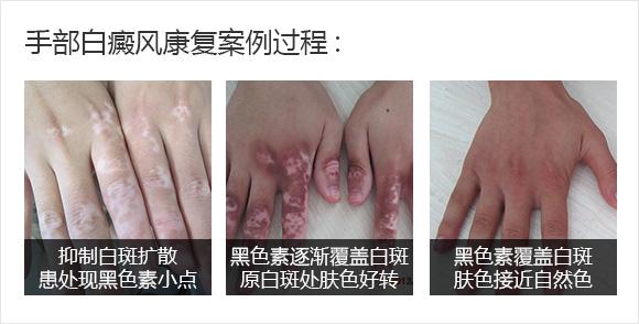 手部康复案例