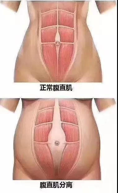分娩后,53%产妇出现这种情况,导致身材走样