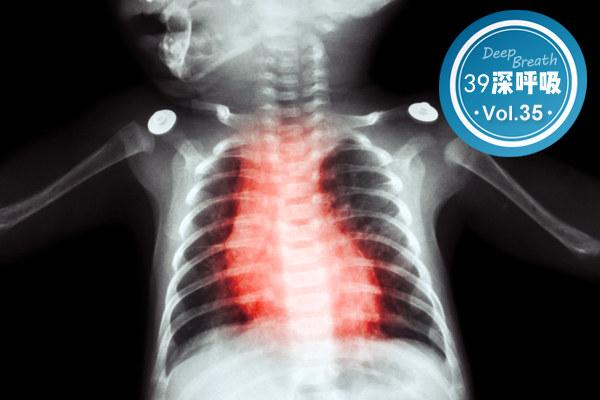 家长请重视:孩子频繁有4个异常,可能得了先天性心脏病