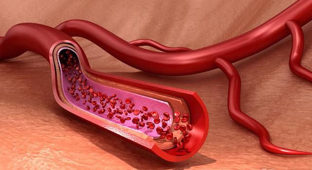 终于找到预防血栓的方法了!