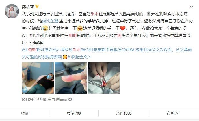 邓萃雯拔倒刺发炎入院手术!如何护理指甲间的皮肤