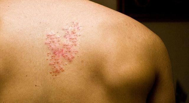 带状疱疹高发,五成患者遗留神经痛