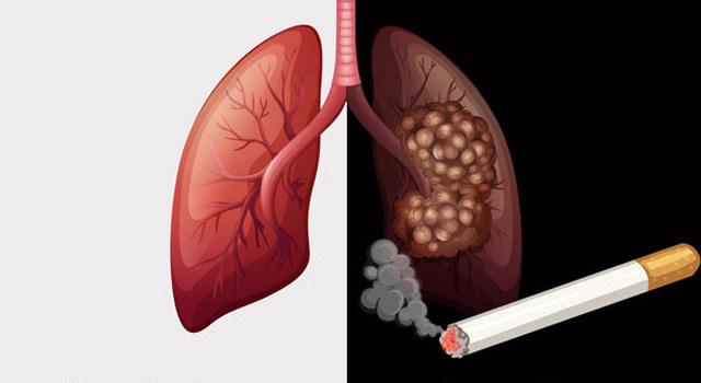 早发现早治疗,Ⅰ期肺癌九成可治愈!