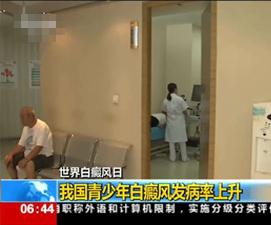 潍坊白癜风医院
