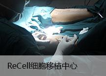 Recell细胞移植