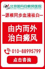 北京的白癜风医院