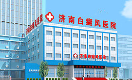 济南白癜风专科医院