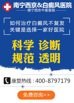 南宁白癜风医院