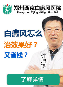 郑州治疗白癜风的医院