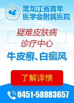 哈尔滨治疗白癜风的医院