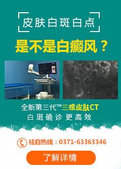 郑州白癜风医院排名