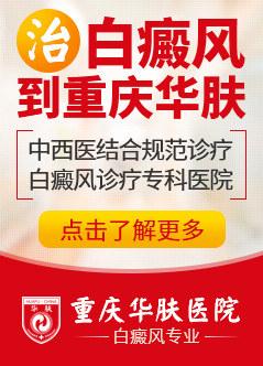 重庆治疗白癜风医院