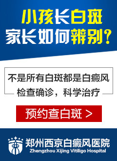 郑州西京白癜风医院官网介绍