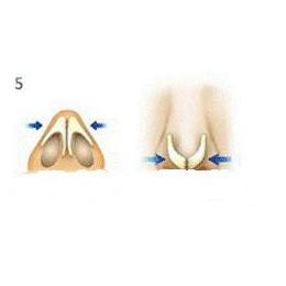 膨体隆鼻手术过程,分为几个步骤?