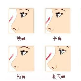 膨体隆鼻多久才会变软?