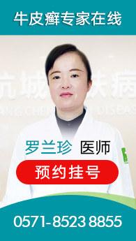 杭州银屑病医院