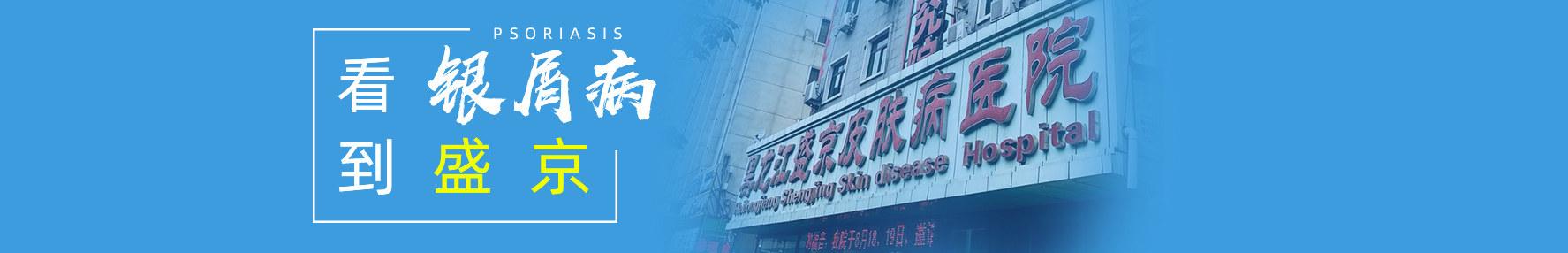 哈尔滨银屑病医院