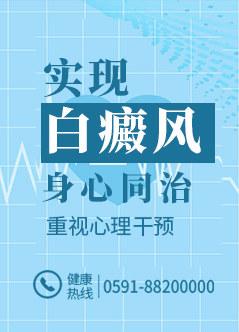 福州治疗白癜风