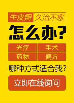 广州治疗牛皮癣医院