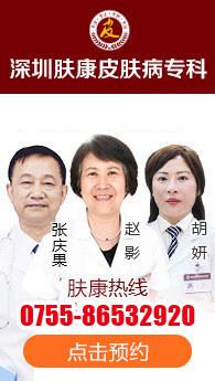深圳牛皮癣医院
