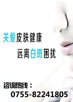 深圳治疗白癜风专科