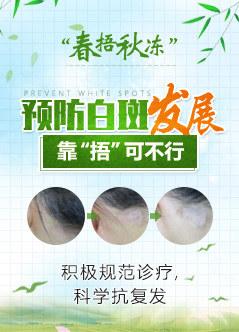 武汉治疗白癜风的在线视频偷国产精品