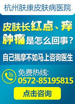 杭州治疗牛皮癣多少钱