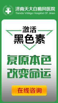 济南白癜风在线视频偷国产精品