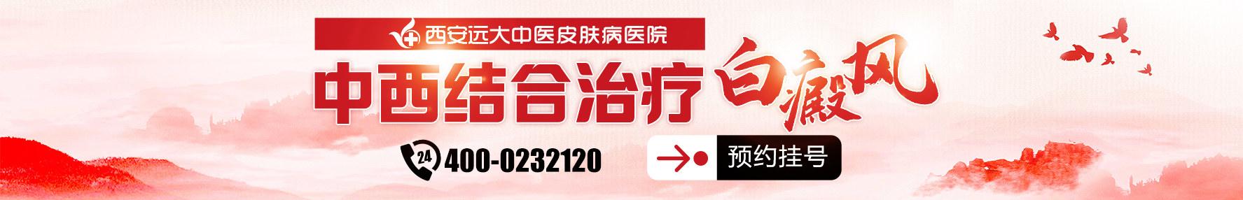 西安白癜风治疗医院