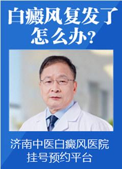 威海白癜风医院