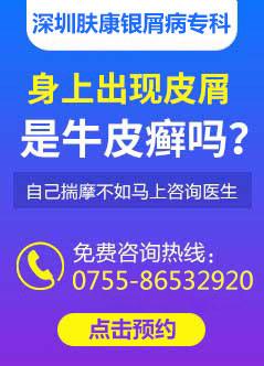 深圳白癜风在线视频偷国产精品