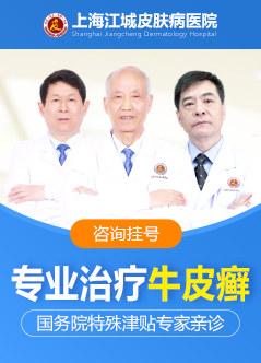 上海牛皮癣治疗医院