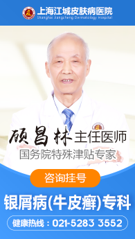 上海牛皮癣医院哪家好