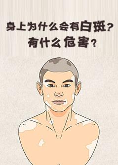 广州白斑病医院