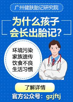 广州胎记医院在线咨询