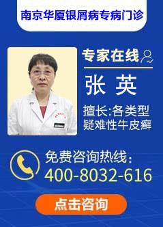 南京治疗牛皮癣医院